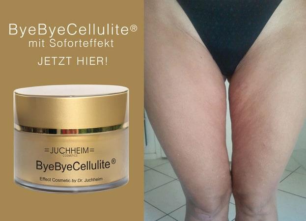 Juchheim Cosmetics ByeBye Cellulite